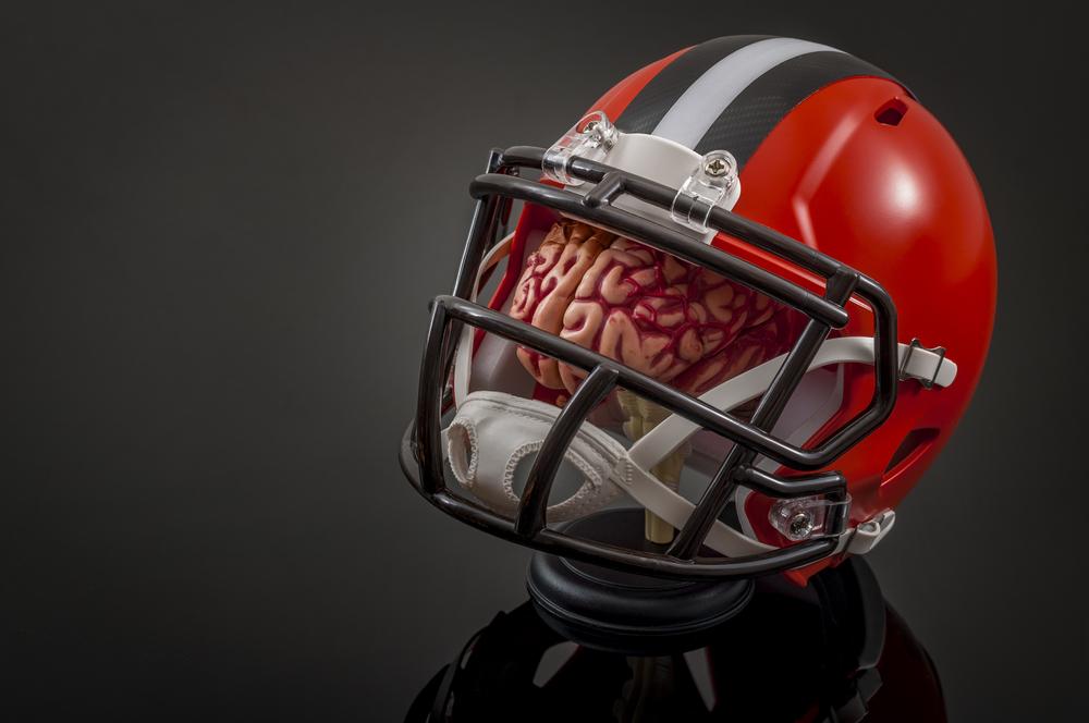 Concussion Confusion